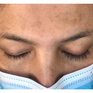 resultados-visibles-nost-cosmetics