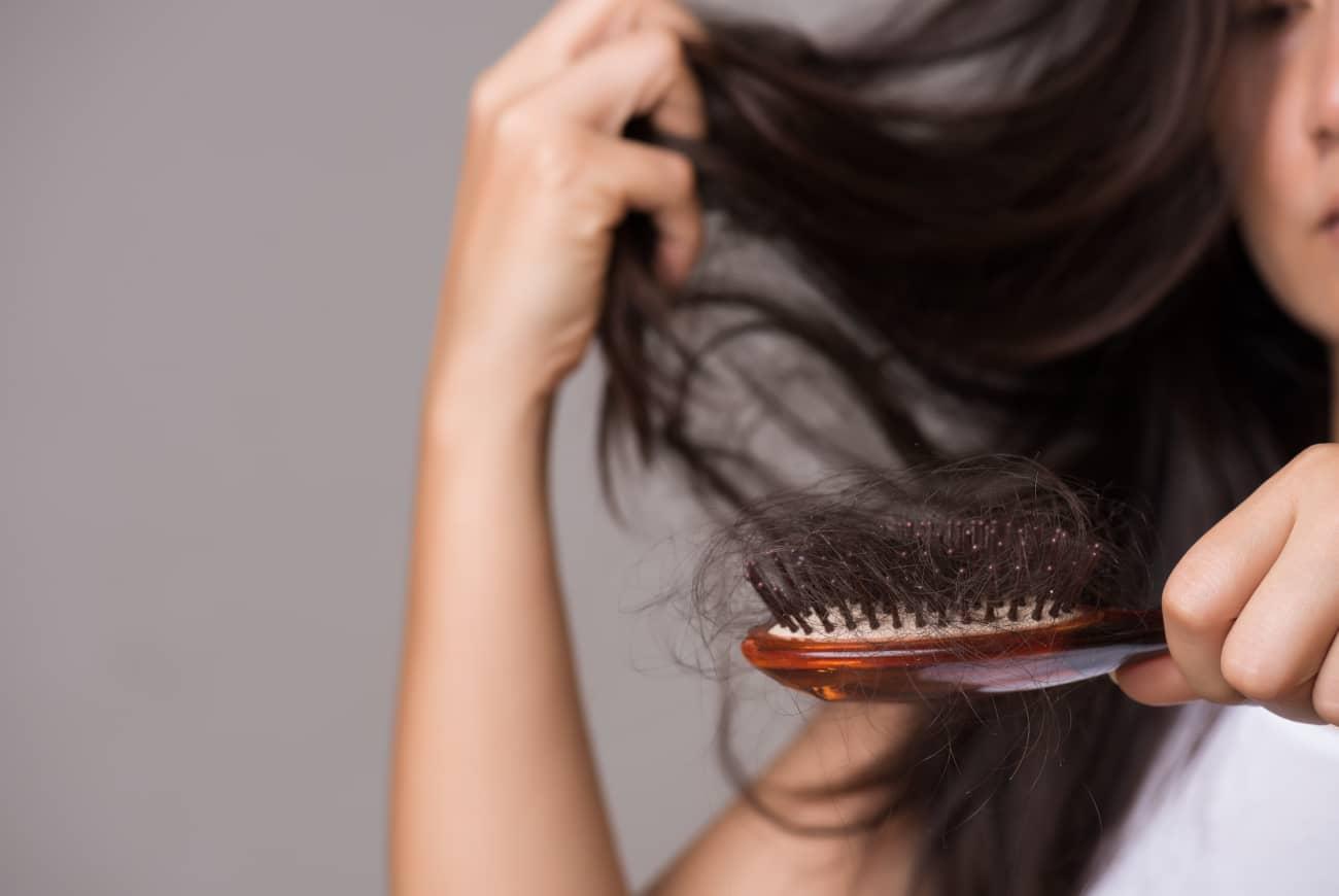 alopecia areata mujer